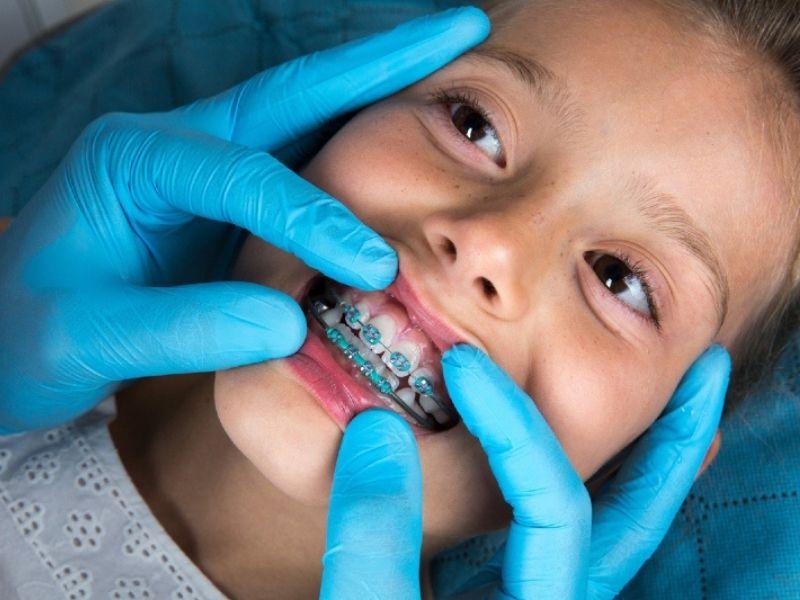 Σιδεράκια δοντιών για παιδιά. Οι έμπειροι ορθοδοντικοί από το ΟΔΟΝΤΙΑΤΡΙΚΟ ΑΘΗΝΩΝ μας λύνουν τις απορίες και μας ενημερώνουν για όλα.